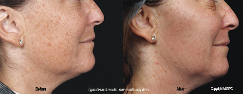 fraxel skin treatments foxhall dermatology dr susan t elliott. Black Bedroom Furniture Sets. Home Design Ideas