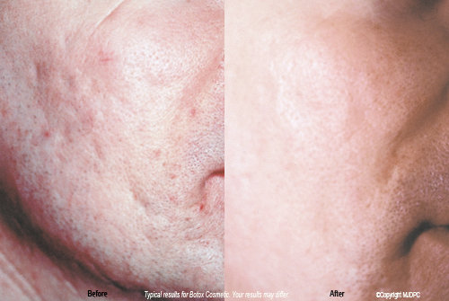 acne_scarring1