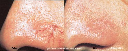 aesthetic_laser_treatments3