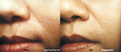 facial_scars1