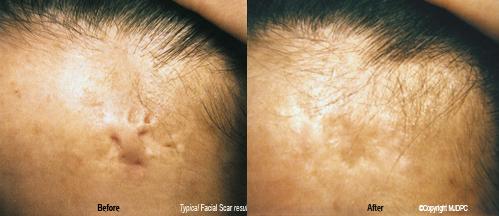 facial_scars3