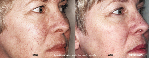 facial_vein_treatments3