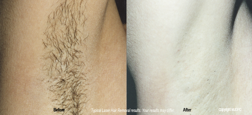 laser_hair_removal2