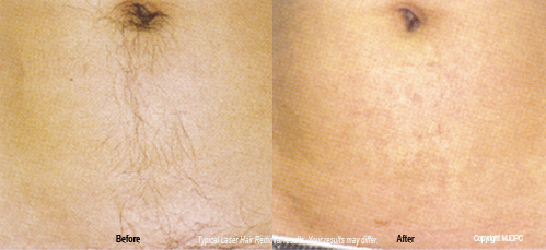 laser_hair_removal3