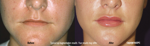 lip_augmentation3