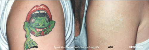 Tattoo Removal - Cosmetic Procedure Content