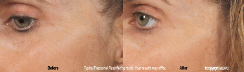 fractional_resurfacing2