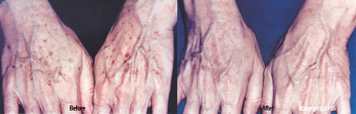 hand_rejuvenation_treatments1