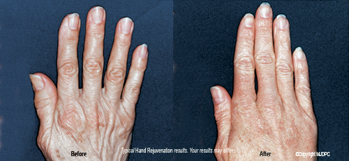 hand_rejuvenation_treatments3