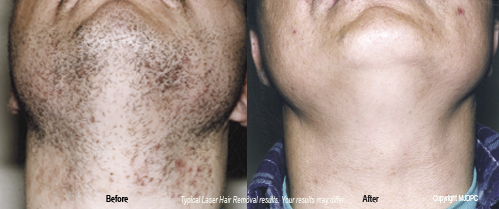 laser_hair_removal1
