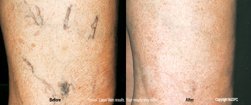 laser_spider_vein_treatments2