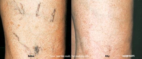 laser_spider_vein_treatments2