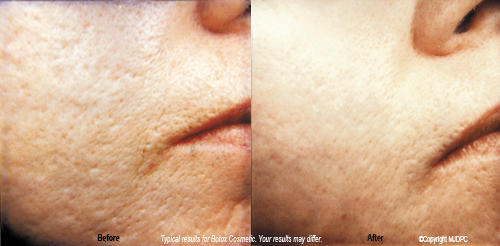 acne_scarring2