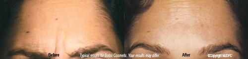 botox_cosmetic3