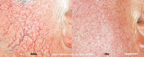 facial_vein_treatments2