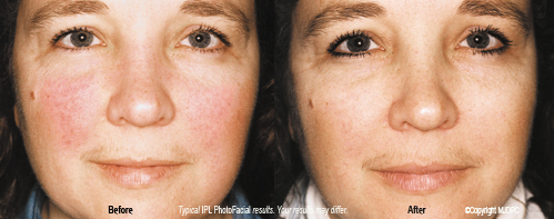 ipl_photo_facial_rejuvenation1