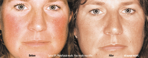 ipl_photo_facial_rejuvenation2