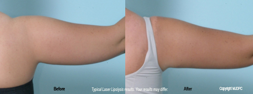 laser_lipolysis3