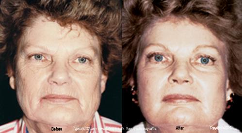 laser_skin_resurfacing1