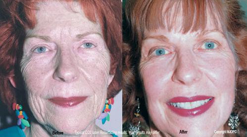 laser_skin_resurfacing2
