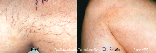 laser_spider_vein_treatments1