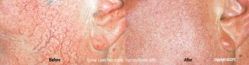 laser_spider_vein_treatments3