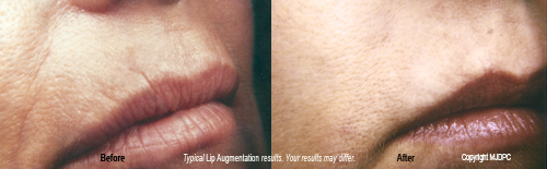 lip_augmentation1