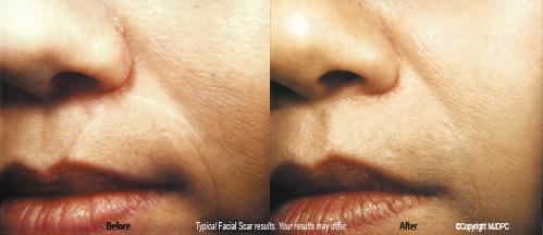 Scar | Stretch Mark | Bellevue | Seattle | Pinnacle Dermatology