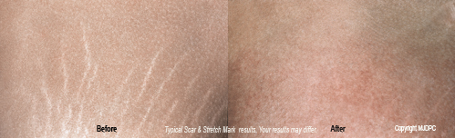 scar_and_stretch_mark_removal2