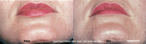 scar_and_stretch_mark_removal3